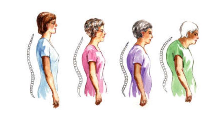 ízületi váll fáj krém méhnyakos osteochondrosis