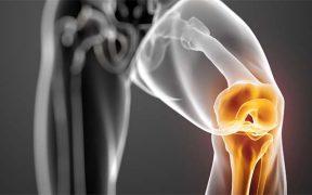 elhízás ízületi betegség akut fájdalom a végtagok ízületeiben