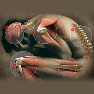TORNAGYAKORLATOK RHEUMATOID ARTRITIS ESETÉN - Fájdalom a könyökízületben, amikor a kezét megnyomja
