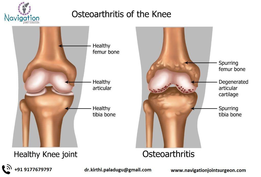 mit kell venni a vállfájdalomtól futás a bokaízület artrózisával