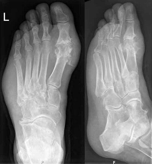 izomfájdalom a lábak karjainak ízületeiben