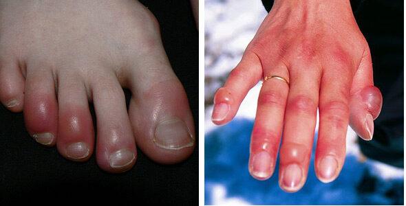 ujj gyulladás kezelése fáj a bordák ízületei