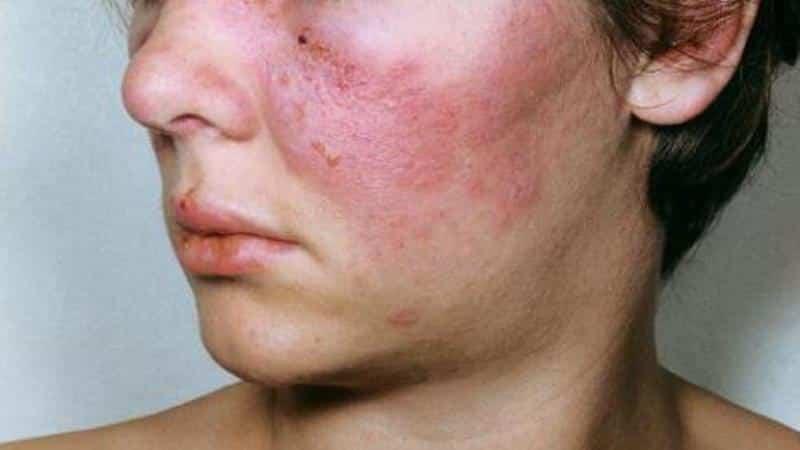 diffúz kötőszöveti betegség klinikai ajánlások ízületi fájdalom, amelyet az orvos kezel