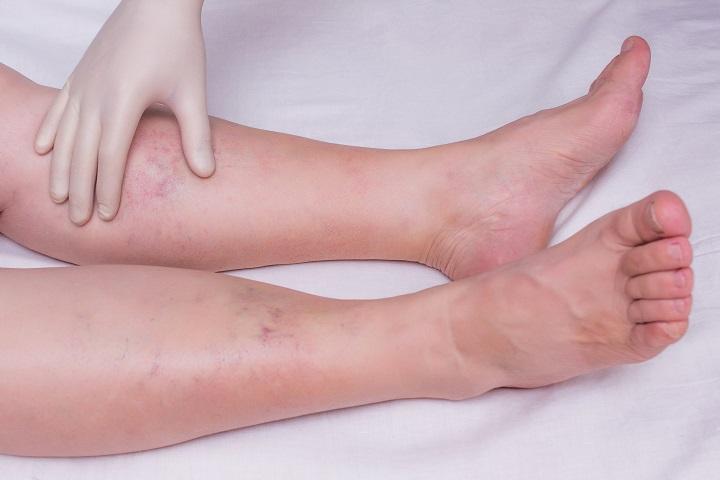fájdalom az alsó lábszár ízület kezelésében