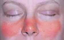 ízületi fájdalom lupus erythematosus kezeléssel