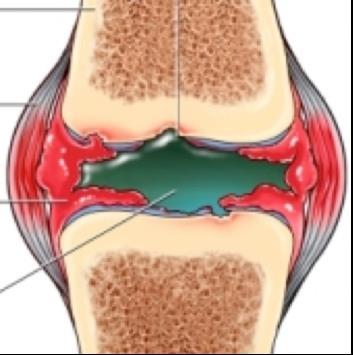a térdízület kezelésének gennyes bursitisz