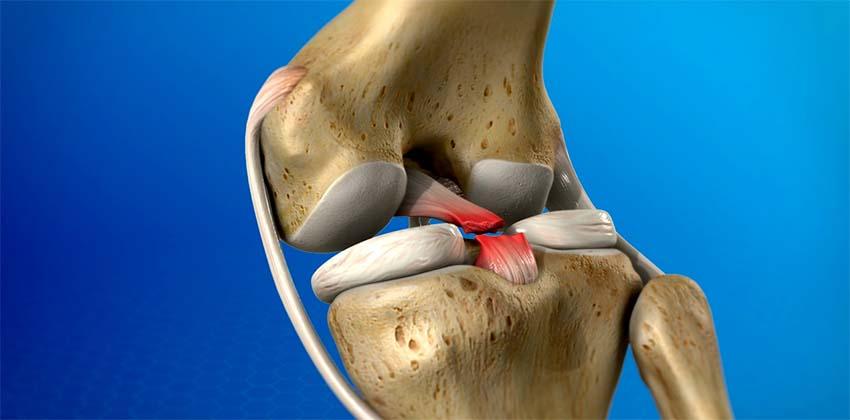 a térdízület hátsó keresztszalagjának sérülései