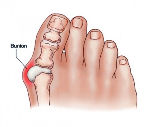 miért fáj a lábujjak ízületei