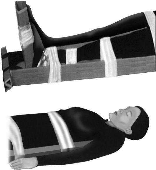 a karok könyökízületeinek meghosszabbítása hosszabbítás során