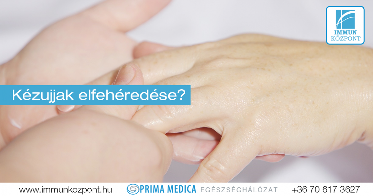 Ehlers–Danlos-szindróma