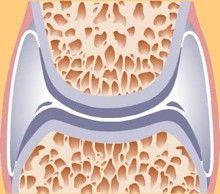 ízületi fájdalom magas cukorral vállízület fájdalom ízületi gyulladás