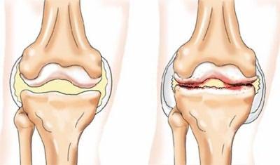 deformáló artrózisos kezelés a kis ízületekben közös gyógymód, amit inni