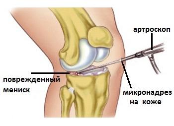 a térdízület meniszkuszának kürtje testépítés vállízület fájdalom
