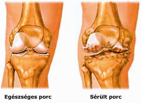 ízületi fájdalom és deformáció