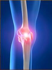 ízületi fájdalmak fedezésére brachialis artrózis hatékony kezelés