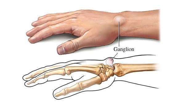 csuklóízületi fájdalom hogyan lehet kezelni a térdízület ragasztásainak könnyét