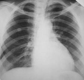 tüdőrák ízületi fájdalom