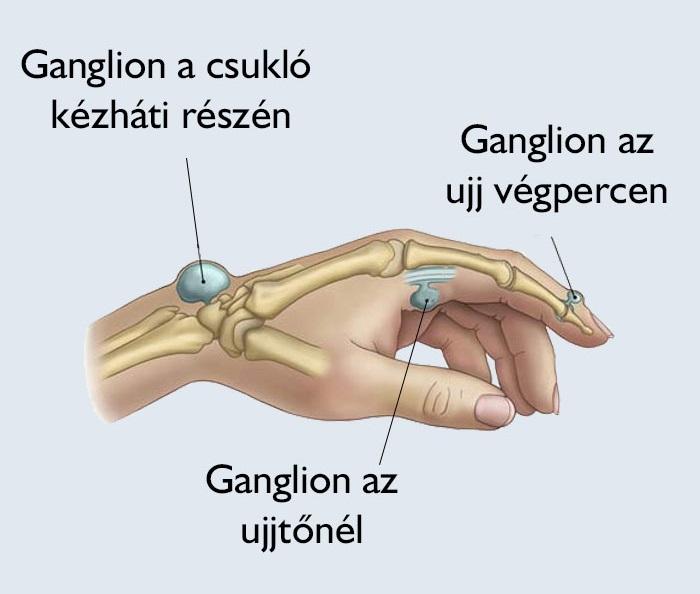 artrózis 3 fokos kezelés minden ízület fáj, ha mozog