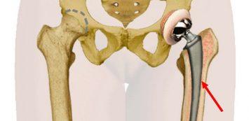 mi a csípő dysplasia kezelés térd ízületi kezelés