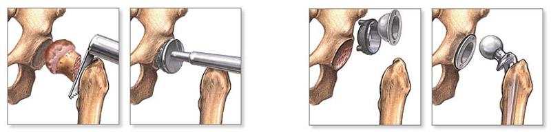 hogyan lehet enyhíteni a duzzanatot és az ízületi fájdalmakat fájdalom a jobb láb térdízületében