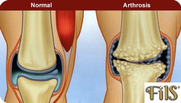 duzzanat az ízületek artrózisával térdfájdalomcsillapítók