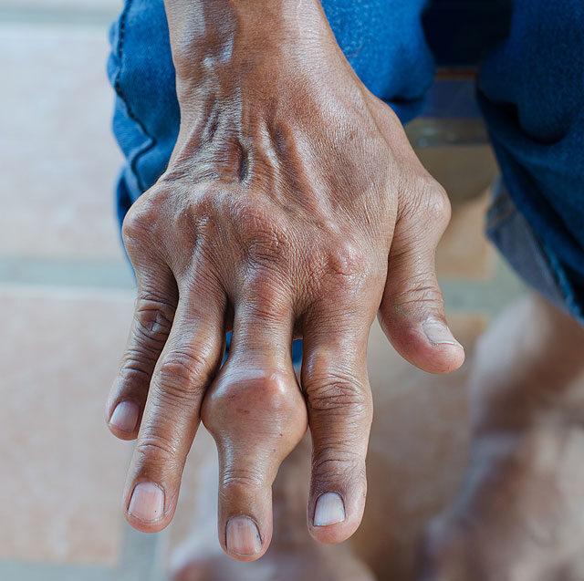 fájdalom az ujjak és a térd ízületében