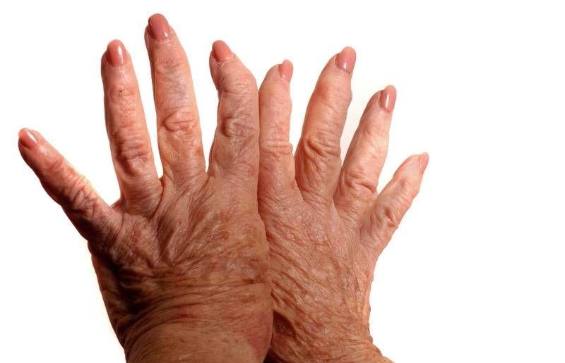 kis ujjízület sérülése erős gyógyszer az ízületi fájdalmakhoz