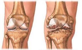 a csontok és ízületek gennyes gyulladása a nagy ízületek periartikuláris szöveteinek gyulladása