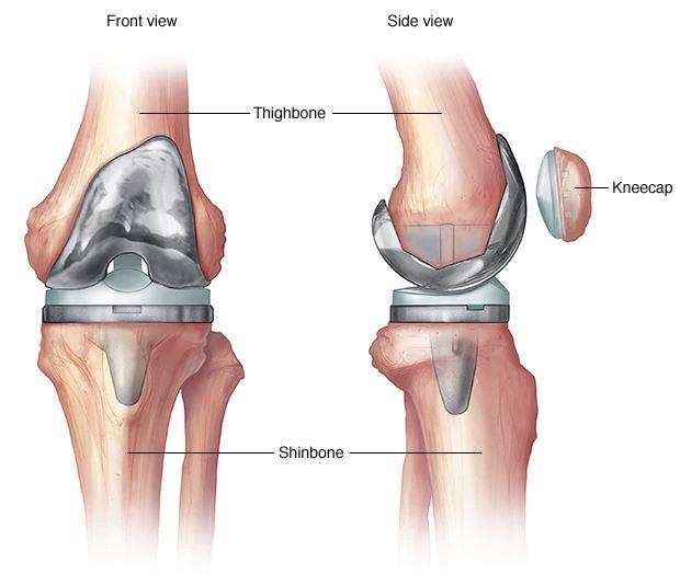 hogyan kezeljük a térdízületeket és hogyan kezeljük ízületi fájdalom a jobb oldalon