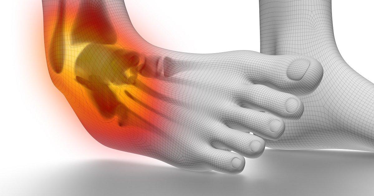 erős boka és térd fájdalom az ízületek fájnak az idegek miatt