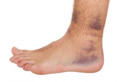 fájdalom a boka kezelés alatt