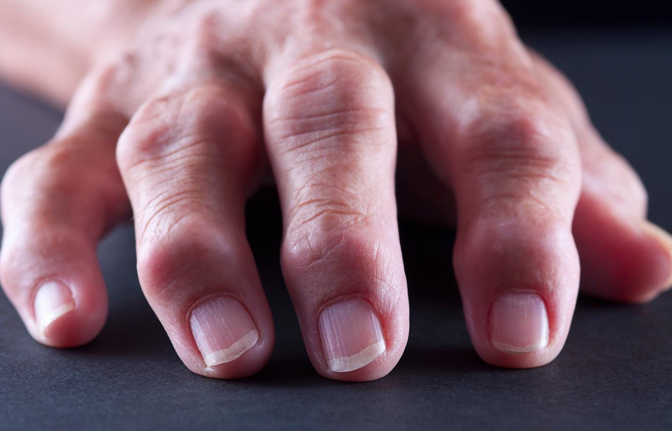 rheumatoid arthritis kivételével ízületek