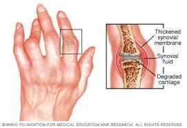 az ízületi fájdalmak nem növelik a fegyvereket artrózisos orvos