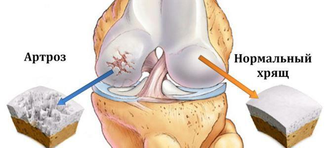 az ízületi betegség osteoarthritis 3 fok