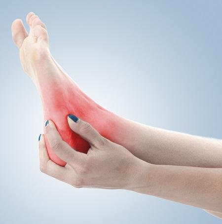 köszvényes arthritis boka kezelése térdstabilitási kezelés