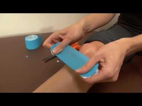 Hogyan alkalmazzuk a kinesiology tape-et?