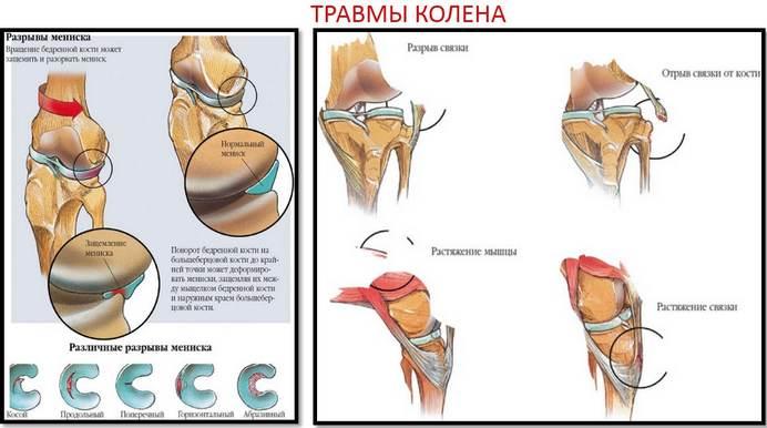 A csípő-ízületi gyulladás: tünetek, kezelés és megelőzés - Köszvény