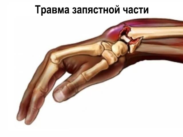 fájdalomtörés a vállízületben
