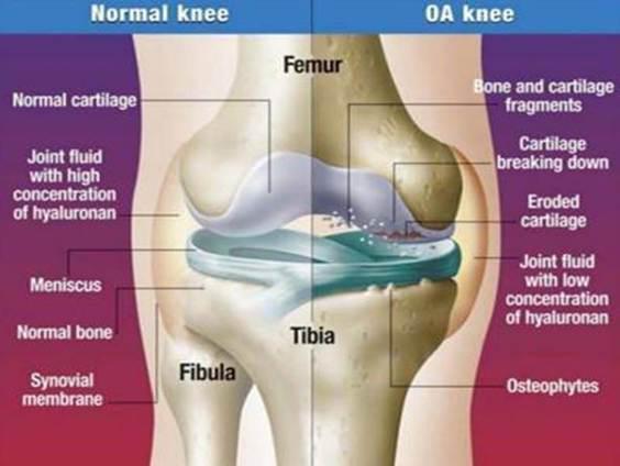 Kondroprotektorok a térd csontritkulására - Diagnosztika July