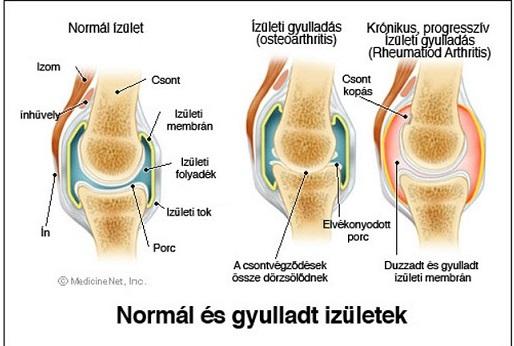 hatékony térdízület ízületi gyulladások a közös kéz nagyon fáj