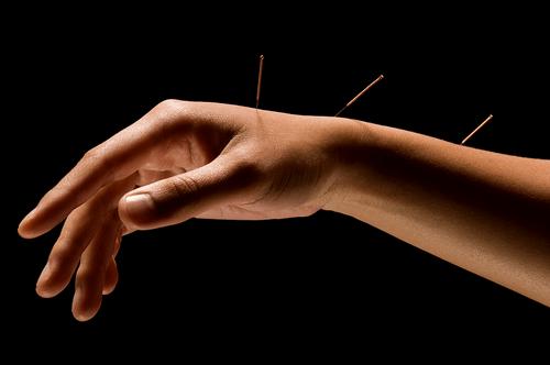 lidaáz ízületi kezelés könyök bursitis kezelő tabletták