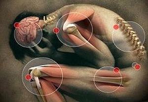 ízületi arzán kezelés az ízületi fájdalom wobenzymje