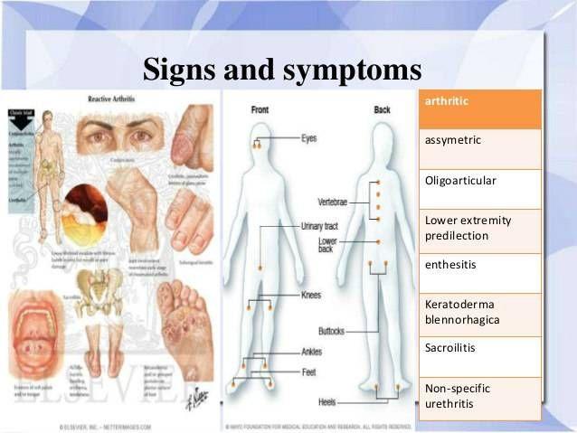 ureaplasmosis és ízületi gyulladások kronikus izuleti gyulladása