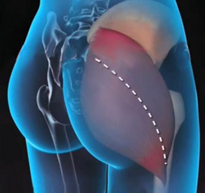 a gyaloglás hasznos a csípőízület artrózisában fáj a talp ízülete