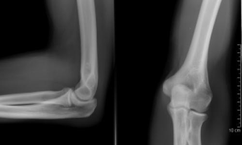 kéz könyökbetegség kezelése deformáció és fájdalom az ujjak ízületeiben