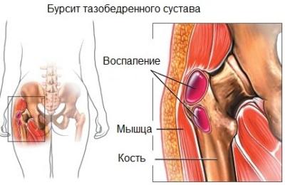 lyukasztó fájdalom a csípőízületben