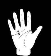 hogyan lehet megszabadulni a csuklóízület fájdalmától