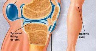térd ligamentum sérülések kezelése
