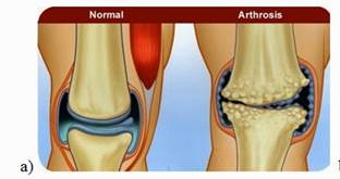 vállbursitis kezelés artritisz lábujjak véleménye, hogy vagy
