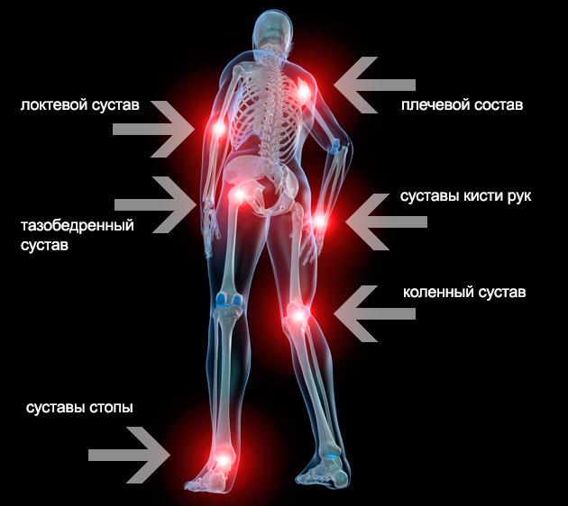A Dimexid alkalmazása artrózisban
